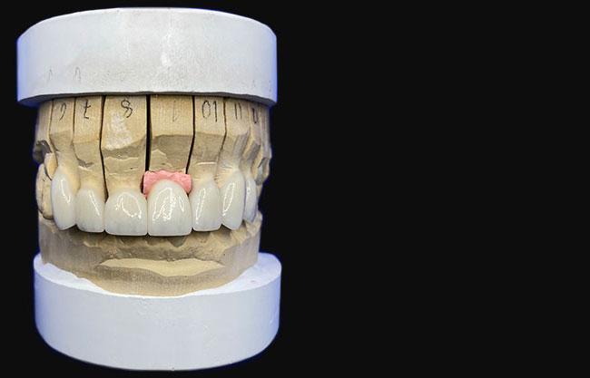Implants & Custom Abutments